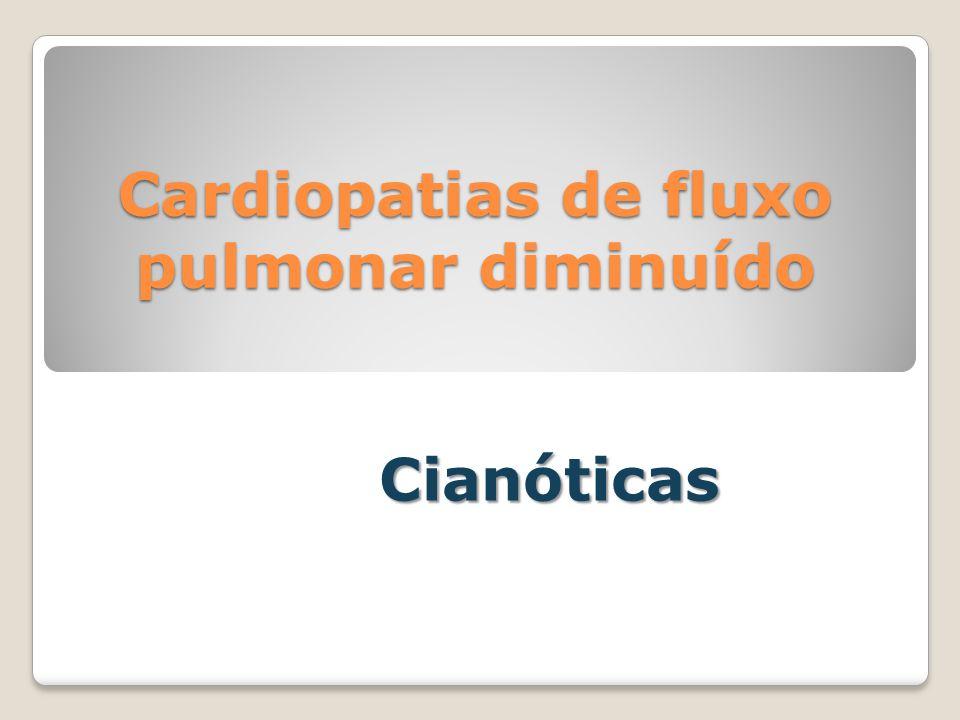 Cardiopatias de fluxo pulmonar diminuído Cianóticas
