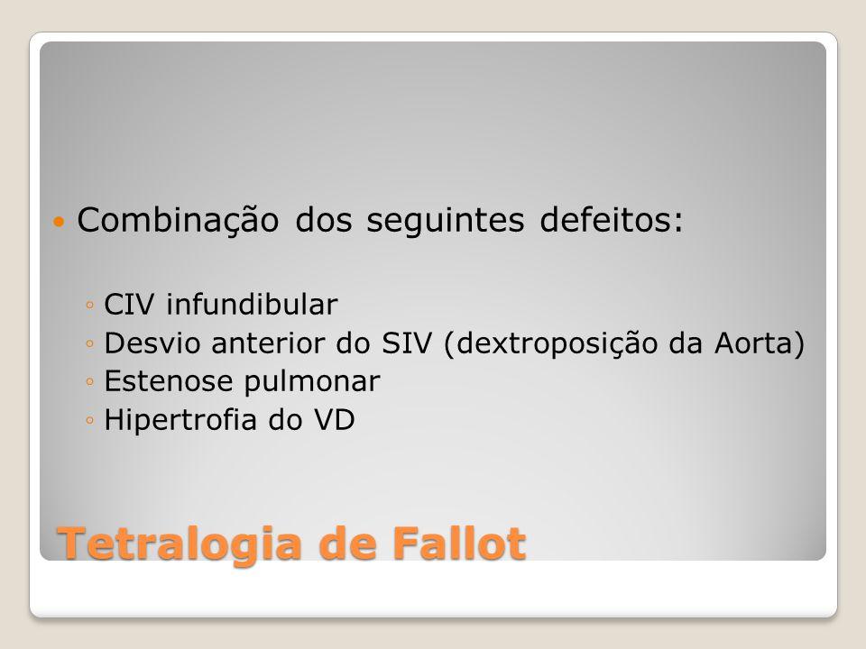 Combinação dos seguintes defeitos: ◦CIV infundibular ◦Desvio anterior do SIV (dextroposição da Aorta) ◦Estenose pulmonar ◦Hipertrofia do VD