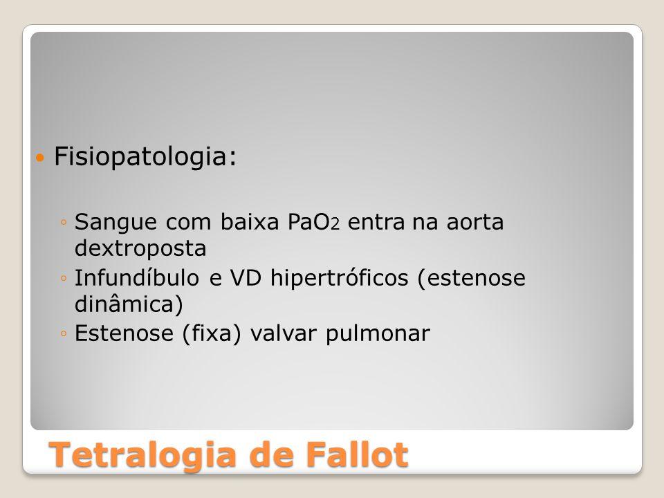 Tetralogia de Fallot Fisiopatologia: ◦Sangue com baixa PaO 2 entra na aorta dextroposta ◦Infundíbulo e VD hipertróficos (estenose dinâmica) ◦Estenose