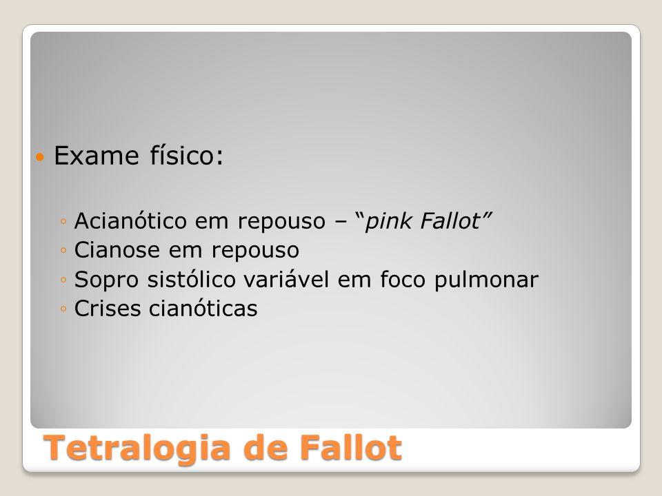 """Tetralogia de Fallot Exame físico: ◦Acianótico em repouso – """"pink Fallot"""" ◦Cianose em repouso ◦Sopro sistólico variável em foco pulmonar ◦Crises cianó"""