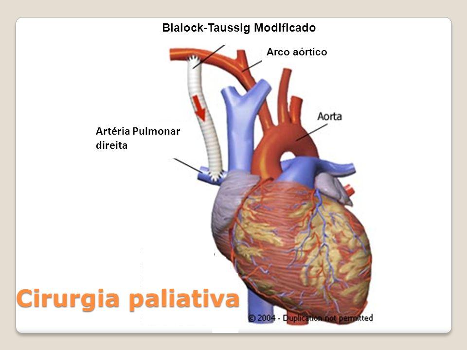 Artéria Pulmonar direita Blalock-Taussig Modificado Arco aórtico Cirurgia paliativa