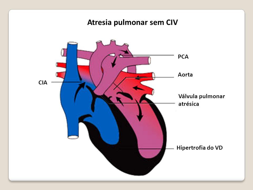 CIA PCA Aorta Válvula pulmonar atrésica Hipertrofia do VD Atresia pulmonar sem CIV