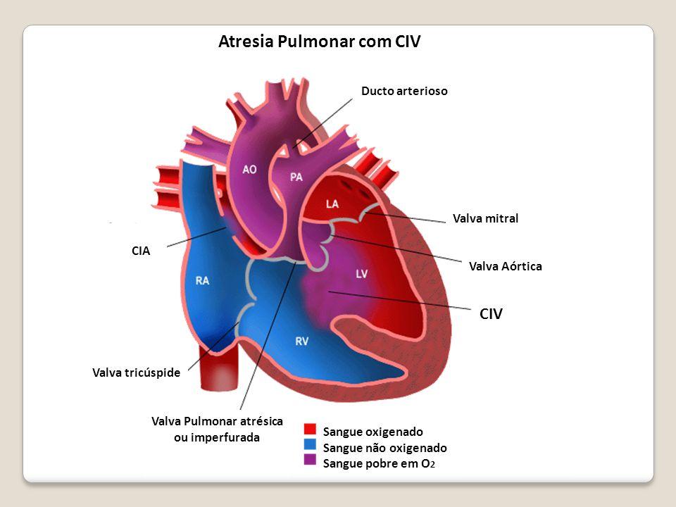Sangue oxigenado Sangue não oxigenado Sangue pobre em O 2 Valva Pulmonar atrésica ou imperfurada Valva tricúspide CIV Valva Aórtica Valva mitral Ducto