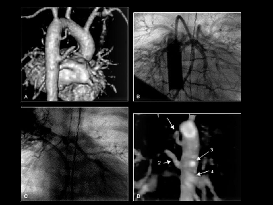 Colaterais alimentando o sistema arteriolar pulmonar (C) Artérias pulmonares de pequeno calibre