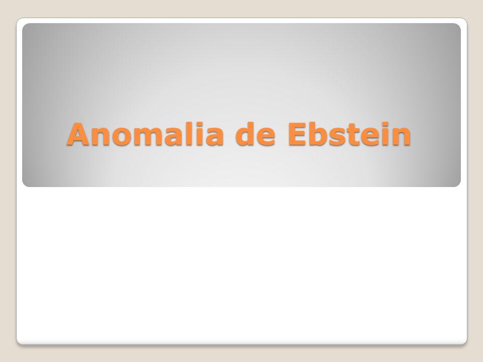 Anomalia de Ebstein