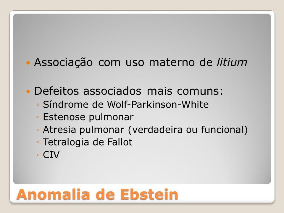 Anomalia de Ebstein Associação com uso materno de litium Defeitos associados mais comuns: ◦Síndrome de Wolf-Parkinson-White ◦Estenose pulmonar ◦Atresi
