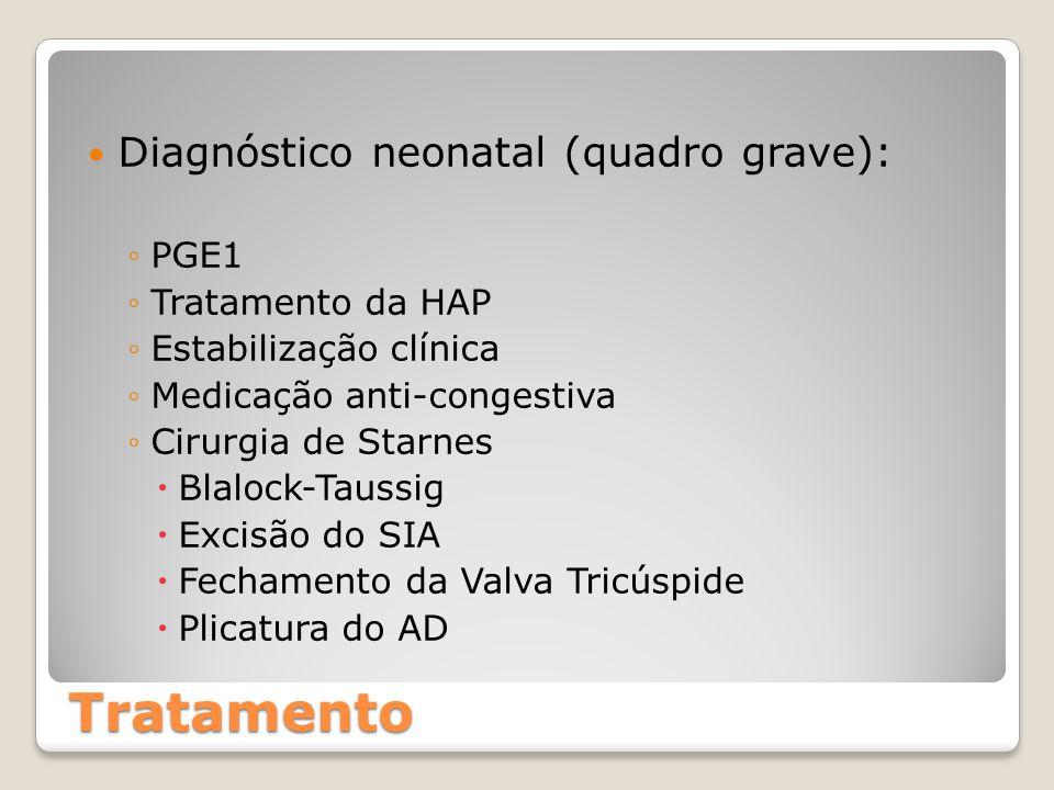 Tratamento Diagnóstico neonatal (quadro grave): ◦PGE1 ◦Tratamento da HAP ◦Estabilização clínica ◦Medicação anti-congestiva ◦Cirurgia de Starnes  Blal