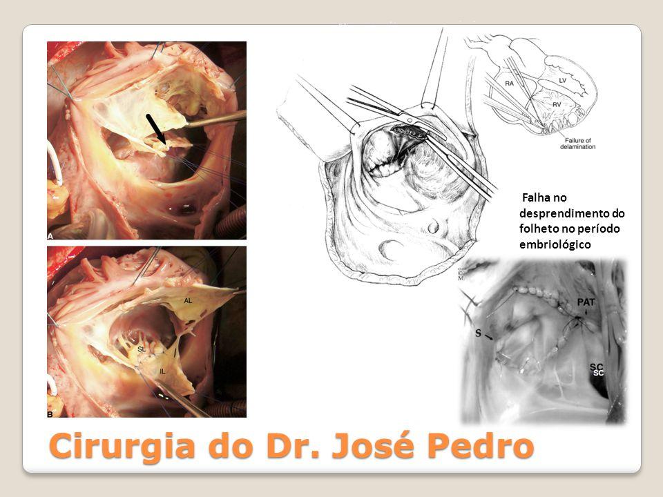 Cirurgia do Dr. José Pedro Falha no desprendimento do folheto no período embriológico