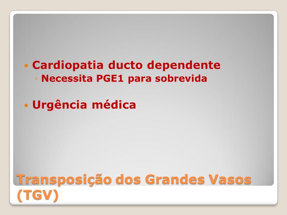 Transposição dos Grandes Vasos (TGV) Cardiopatia ducto dependente ◦Necessita PGE1 para sobrevida Urgência médica