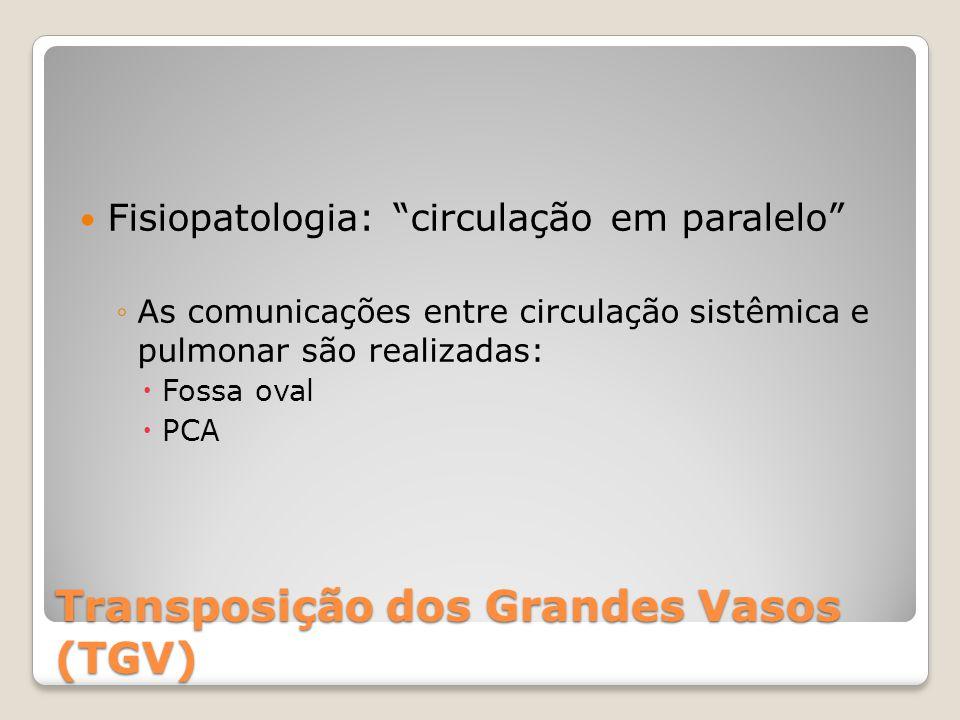 """Transposição dos Grandes Vasos (TGV) Fisiopatologia: """"circulação em paralelo"""" ◦As comunicações entre circulação sistêmica e pulmonar são realizadas: """