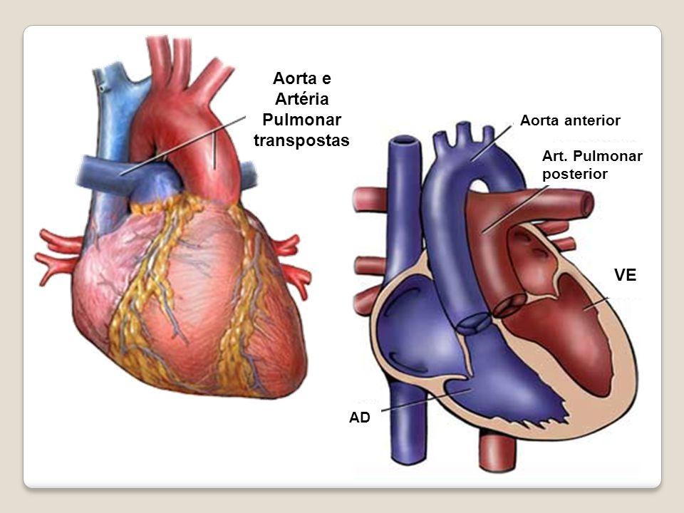 Aorta anterior Art. Pulmonar posterior VE AD Aorta e Artéria Pulmonar transpostas