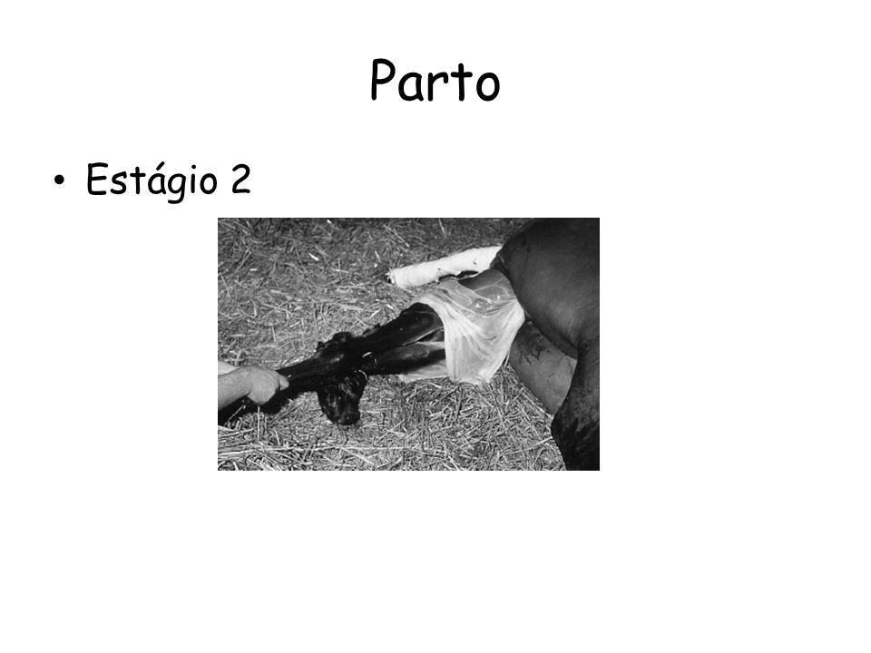 Parto Estágio 2