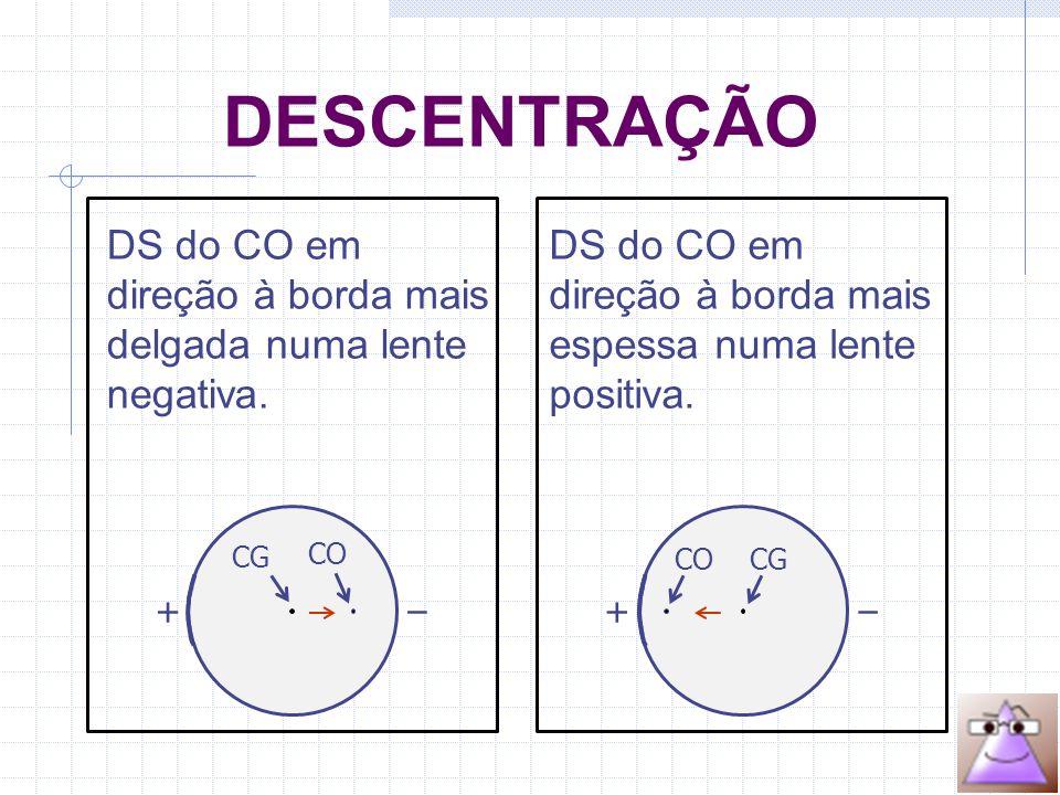CG CO + –– + CG CO DS do CO em direção à borda mais delgada numa lente negativa.