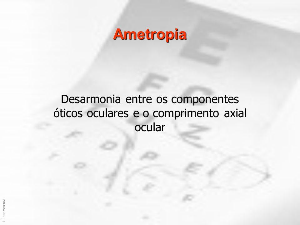 Liliane Ventura Ametropias Esféricas Emetropia Miopia Hipermetropia