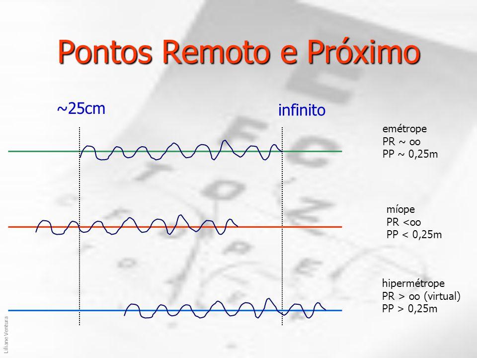  +3 di +5di Prescrição de Lentes Lentes Corretoras: Corretoras: + 3 esf +0 di +2di +0 di +5 esf X -2 cil (  + 90) 0 X +2 cil (  ) 0 14:25