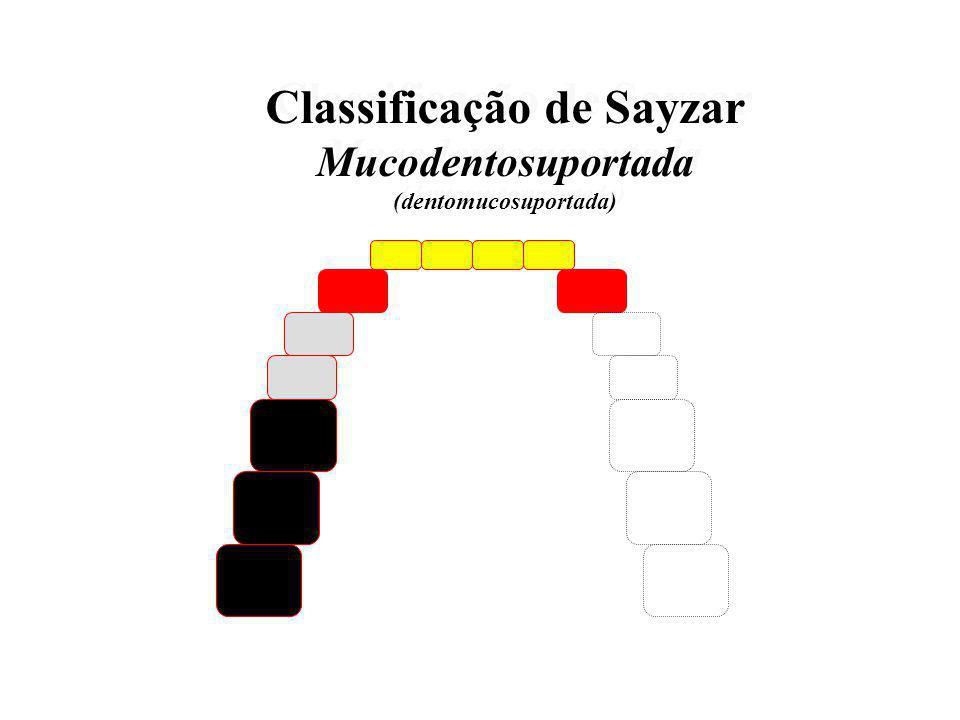 Classificação de Sayzar mucodentosuportada Classificação de Sayzar mucodentosuportada