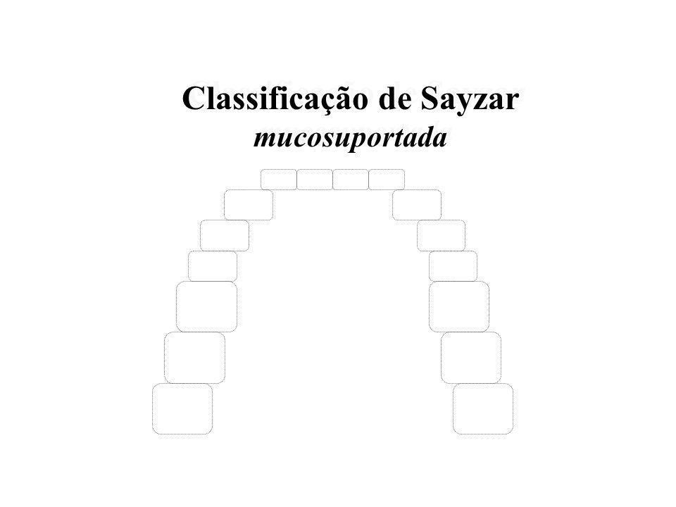 Classificação de Sayzar Mucodentosuportada (dentomucosuportada) Classificação de Sayzar Mucodentosuportada (dentomucosuportada)