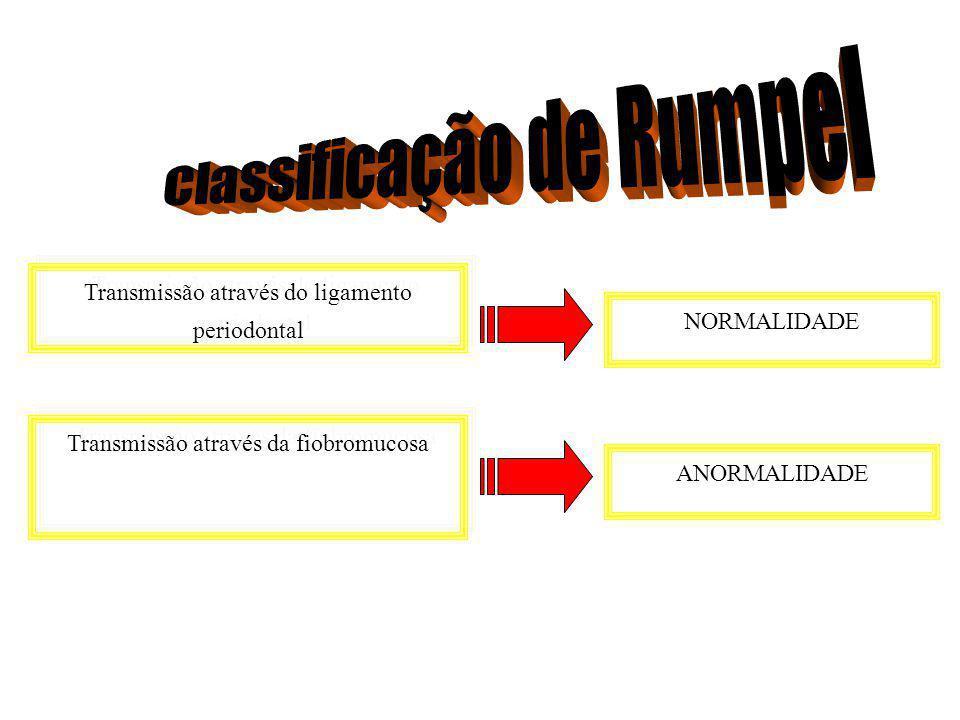 Classifica a prótese de acordo com o meio de transmissão de carga mastigatória ao osso alveolar comparado ao sistema estomatognático normal Classifica
