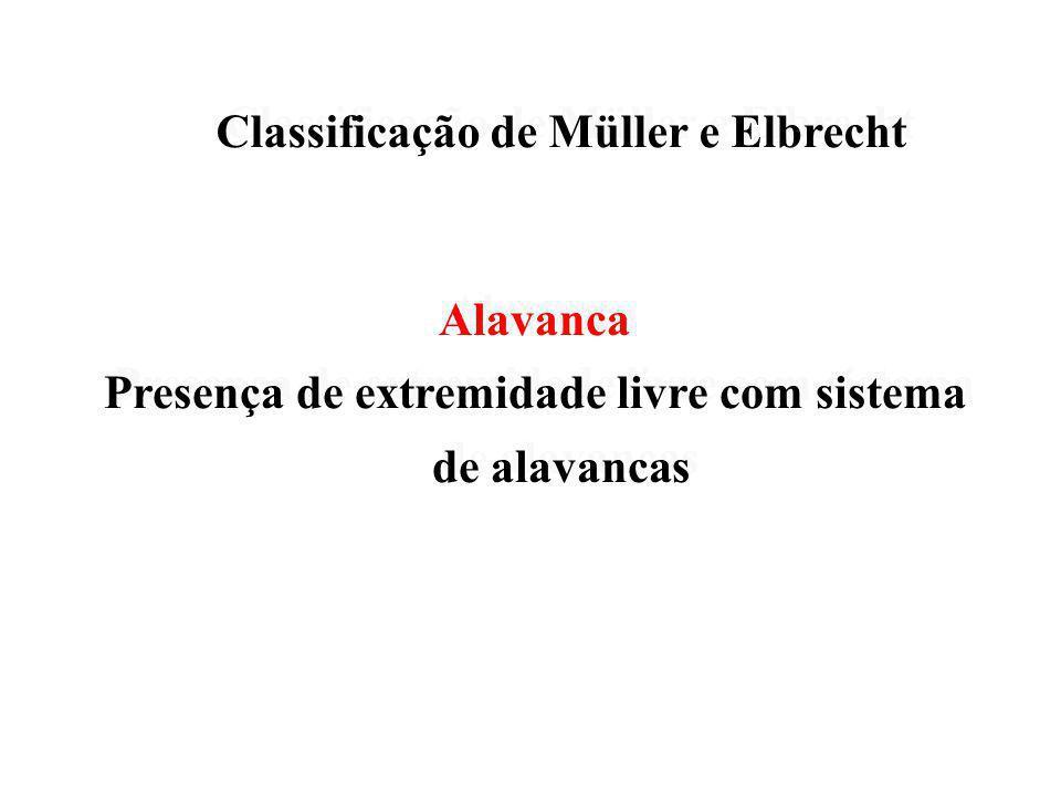 Classificação de Müller e Elbrecht Classificação de Müller e Elbrecht Intercalar Segmento edentado limitado por dentes com ausência de sistema de alav