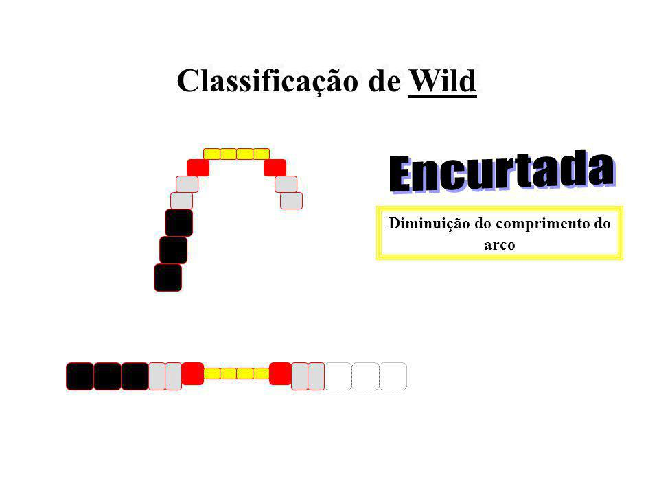 Classifica o arco de acordo com as modificações ocorridas na extensão da plataforma oclusal (trabalho oclusal) Classifica o arco de acordo com as modi