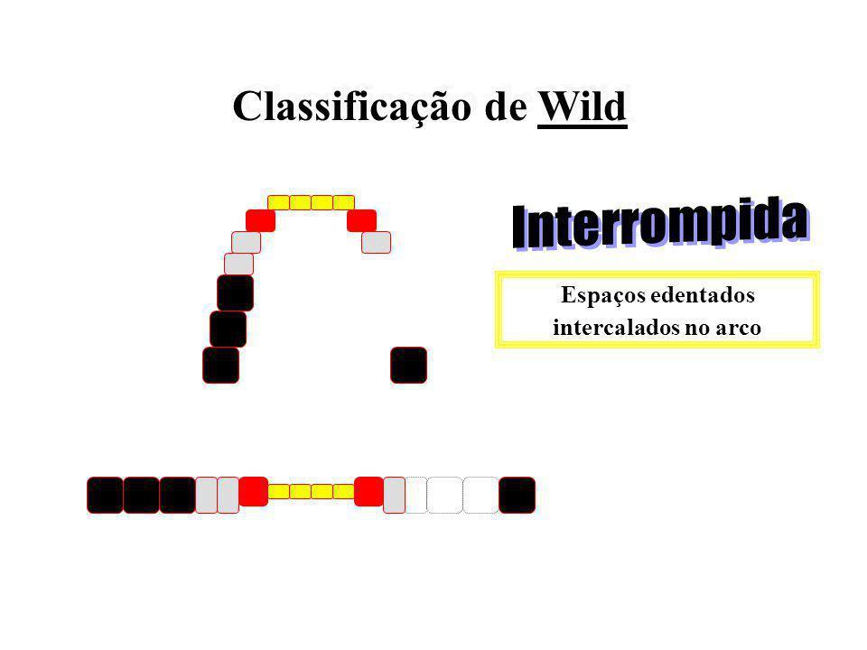Classificação de Wild Classificação de Wild Diminuição do comprimento do arco