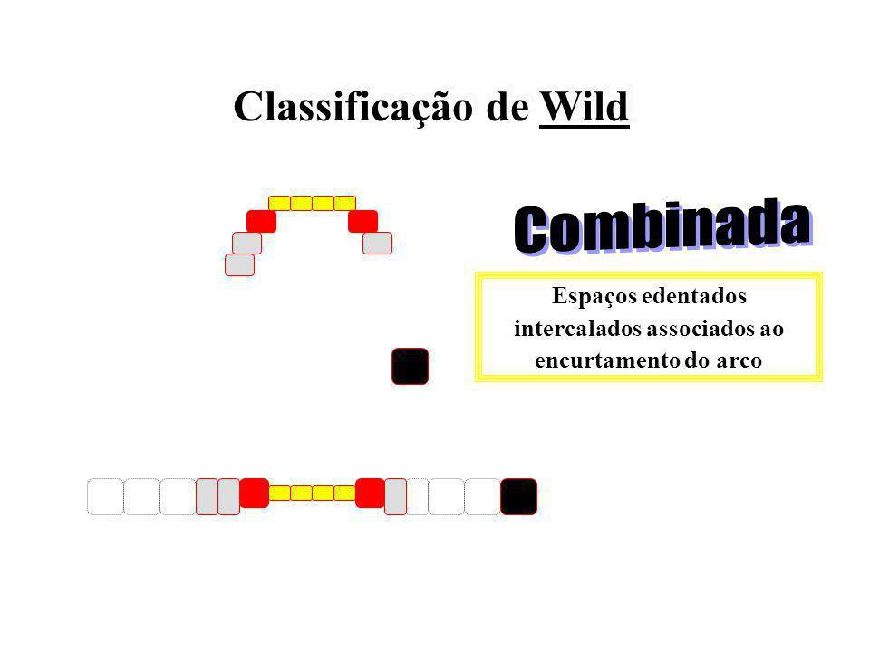Classificação de Wild Classificação de Wild Espaços edentados intercalados no arco
