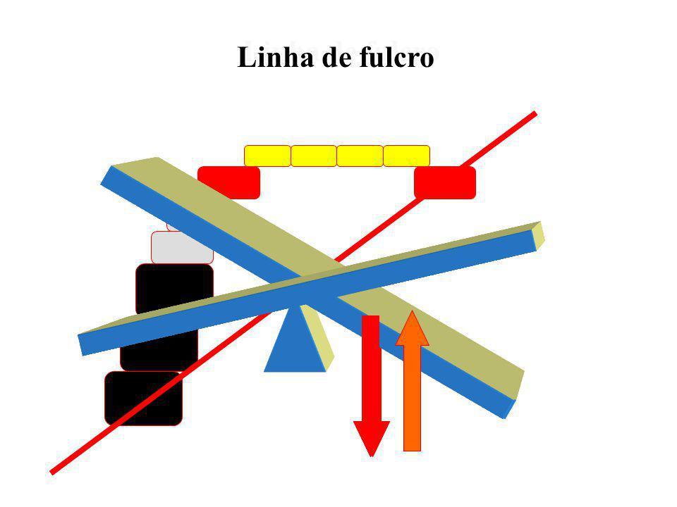Classifica o arco de acordo com a localização das retenções diretas e indiretas induzindo diretamente ao planejamento Classifica o arco de acordo com
