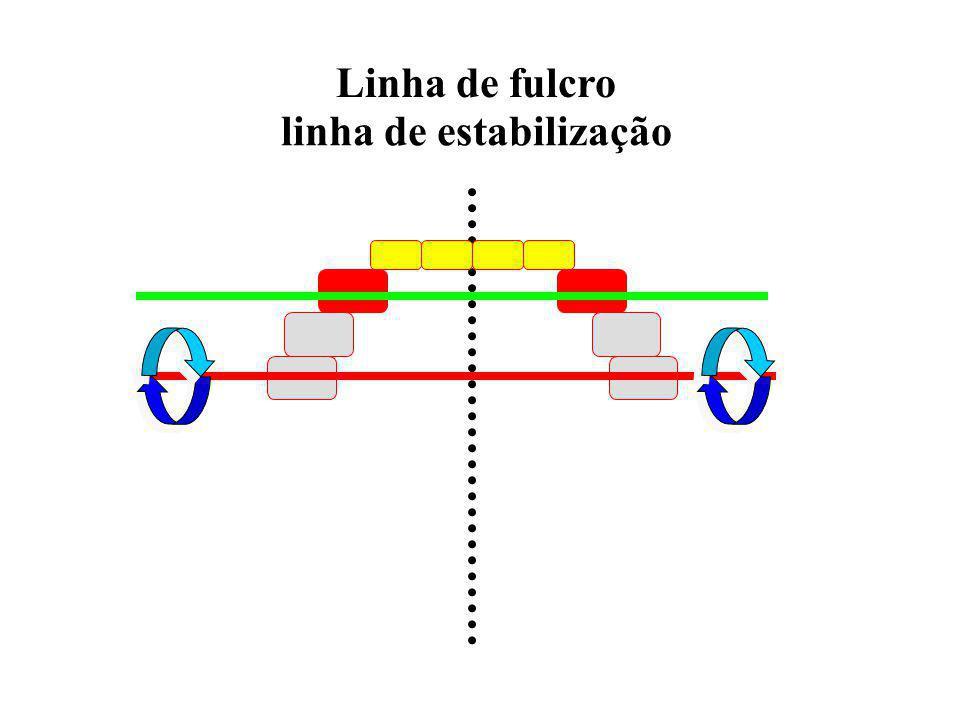 Classe 2 - quando dois dentes diametralmente opostos são escolhidos como retentores diretos COM a presença de retenção indireta Classe 2 - quando dois