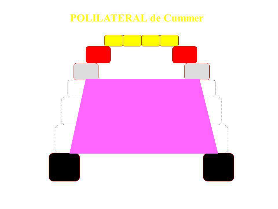 Classe 4 – quando três ou mais dentes são escolhidos como retentores diretos formando polígonos SEM a presença de retenção indireta Classe 4 – quando