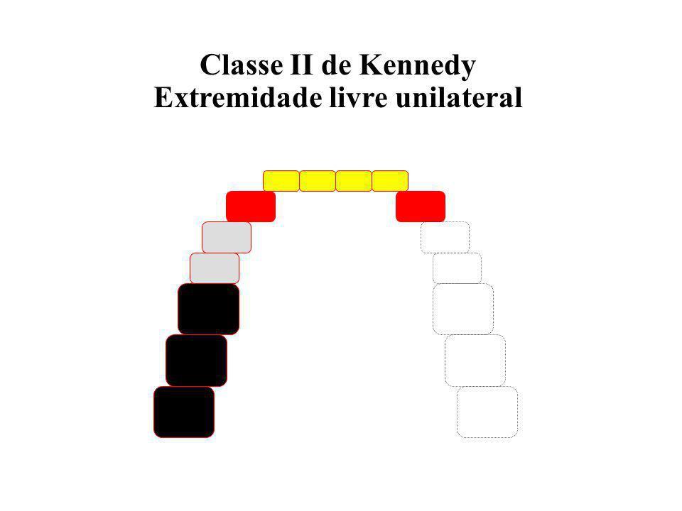 Classe I de Kennedy Extremidade livre bilateral