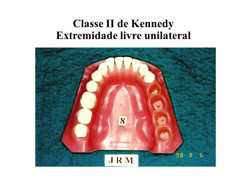 Classe II de Kennedy Extremidade livre unilateral