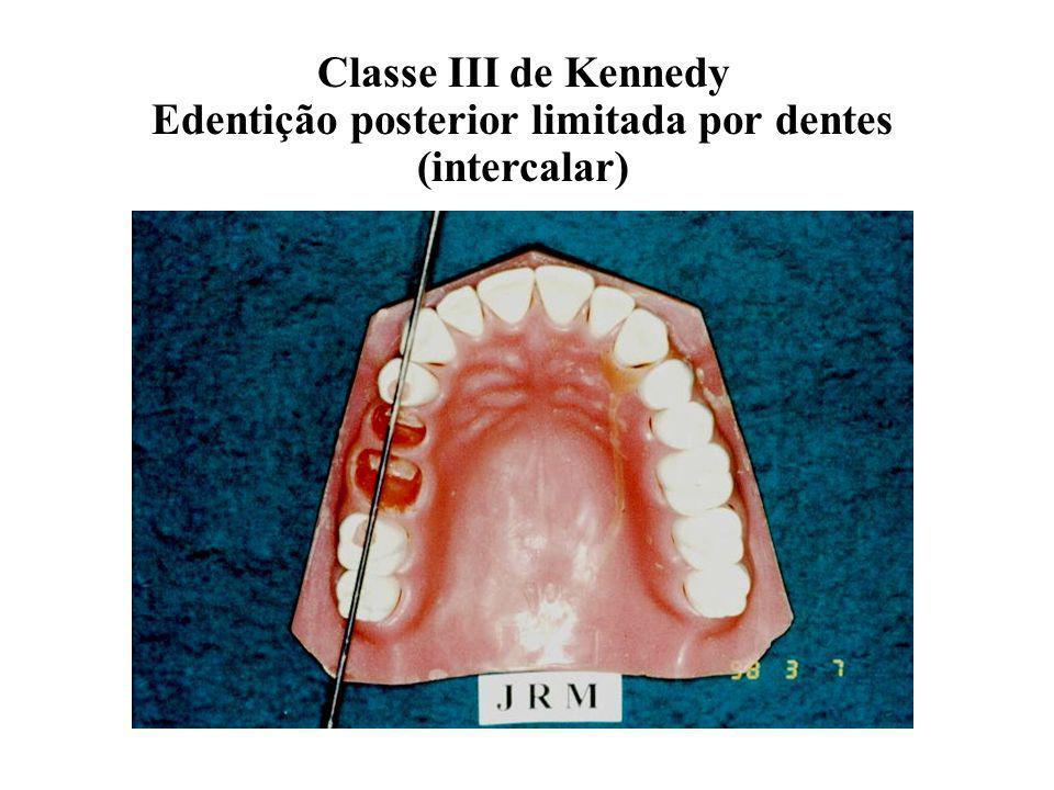 Classe III de Kennedy Edentição posterior limitada por dentes (intercalar)