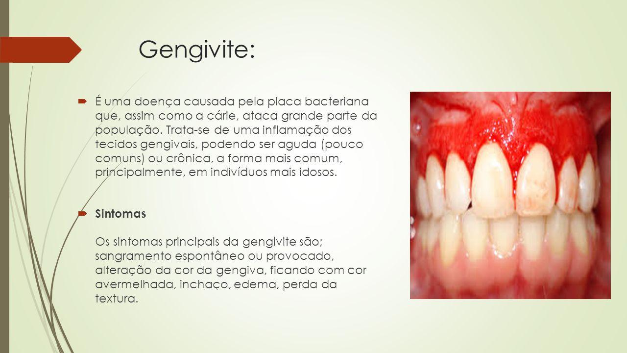 Gengivite:  É uma doença causada pela placa bacteriana que, assim como a cárie, ataca grande parte da população.