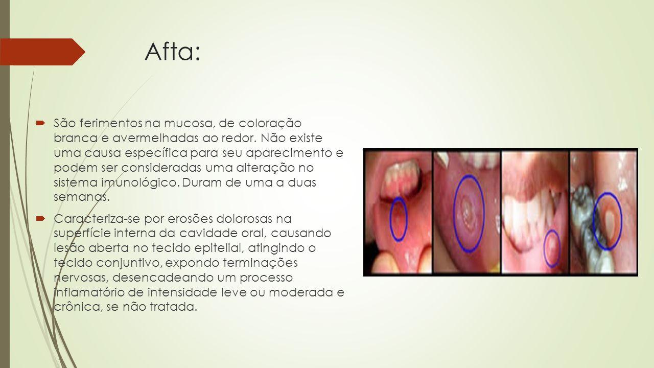 Afta:  São ferimentos na mucosa, de coloração branca e avermelhadas ao redor.