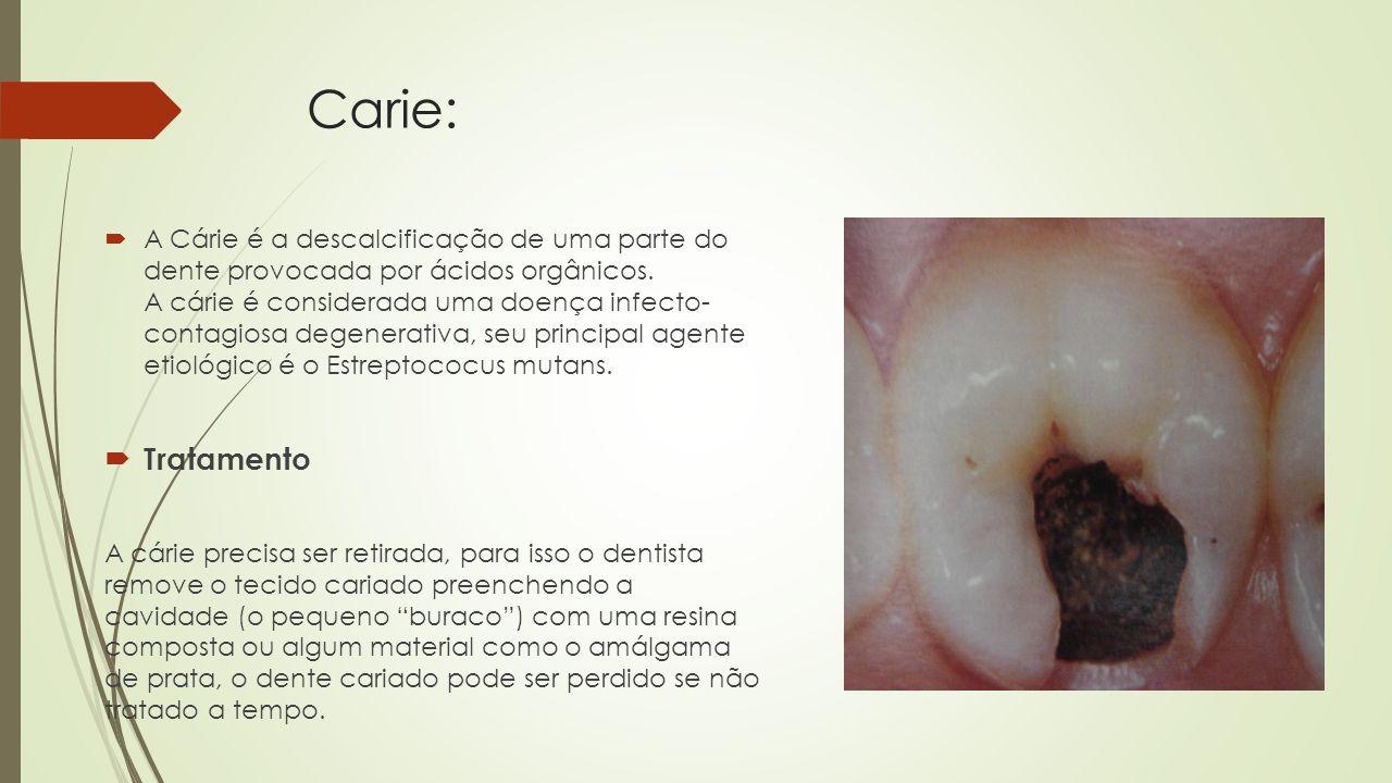 Carie:  A Cárie é a descalcificação de uma parte do dente provocada por ácidos orgânicos.