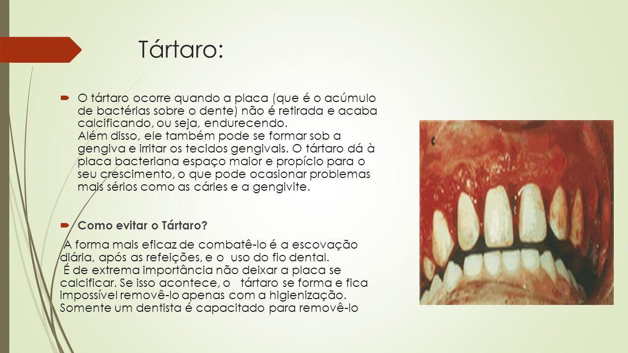 Tártaro:  O tártaro ocorre quando a placa (que é o acúmulo de bactérias sobre o dente) não é retirada e acaba calcificando, ou seja, endurecendo.
