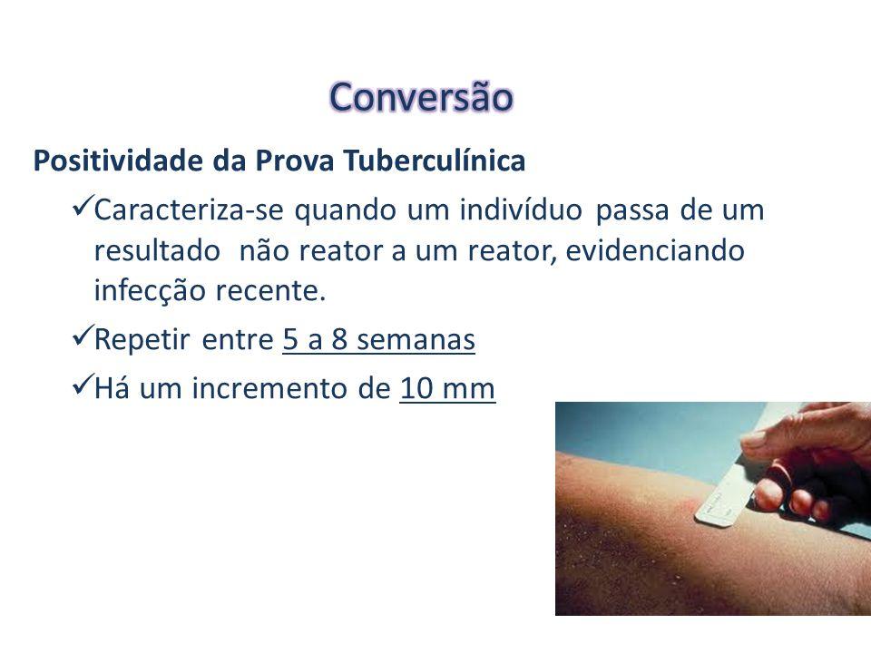 Positividade da Prova Tuberculínica Caracteriza-se quando um indivíduo passa de um resultado não reator a um reator, evidenciando infecção recente.