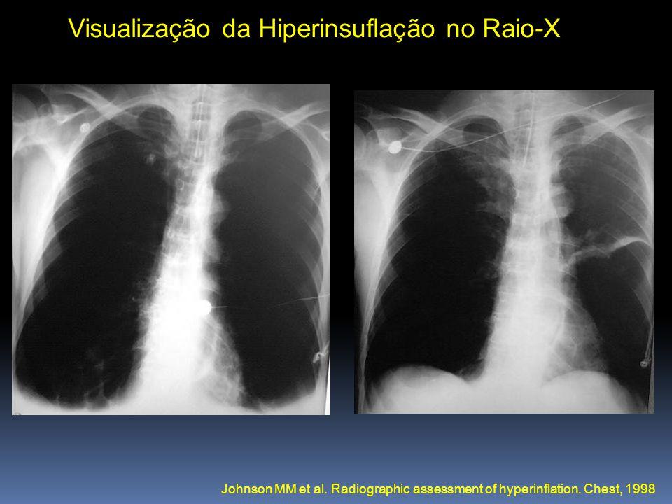 Visualização da Hiperinsuflação no Raio-X Johnson MM et al. Radiographic assessment of hyperinflation. Chest, 1998