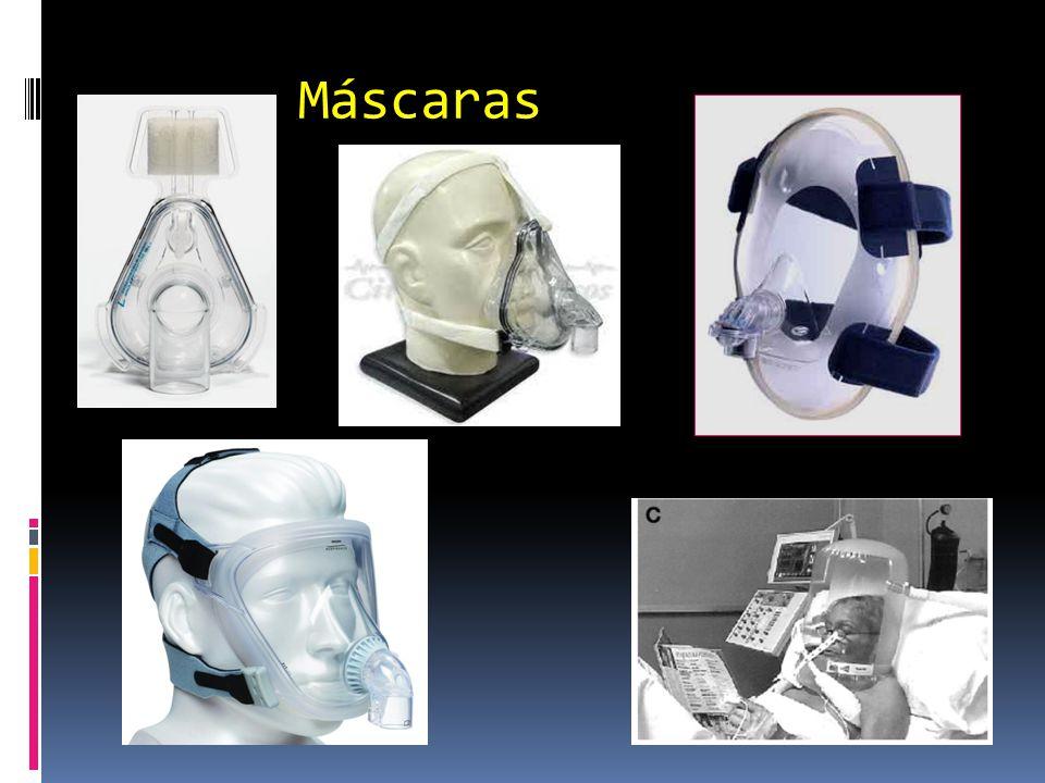 16 Broncoespasmo  do muco na VA Inflamação da VA Aprisionamento de ar Aumento da resistência VA PEEPi Recuo elástico Dispnéia Aumento W respiratório Retificação diafragma Debilidade muscular Falência dos mm.
