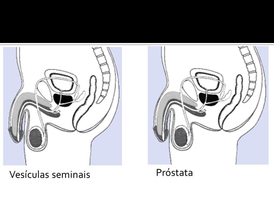 Vesículas seminais Próstata