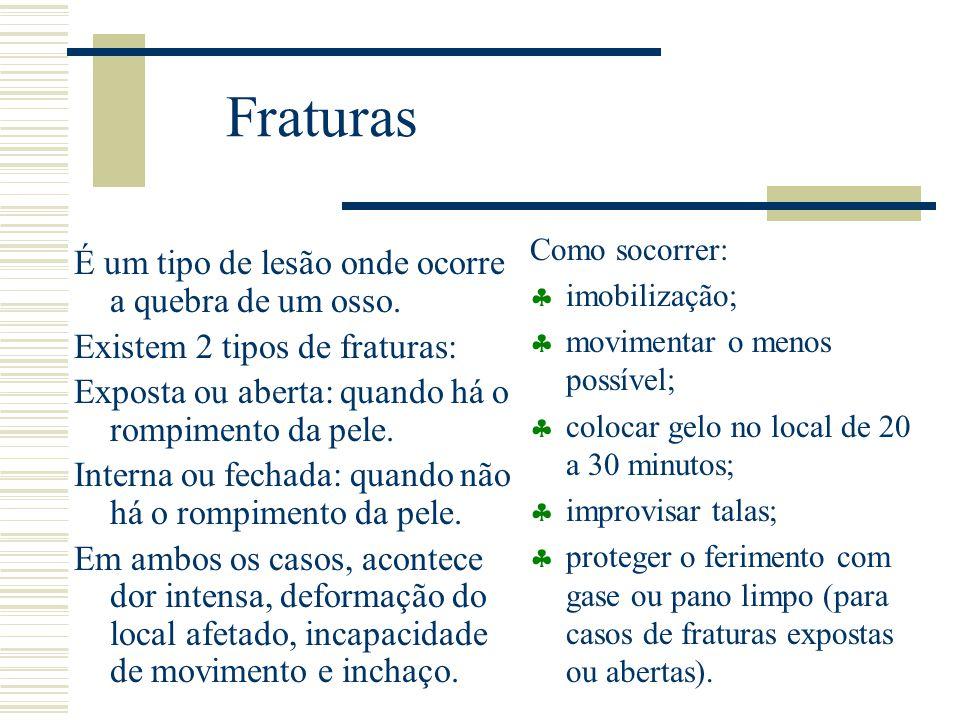 Fraturas É um tipo de lesão onde ocorre a quebra de um osso. Existem 2 tipos de fraturas: Exposta ou aberta: quando há o rompimento da pele. Interna o