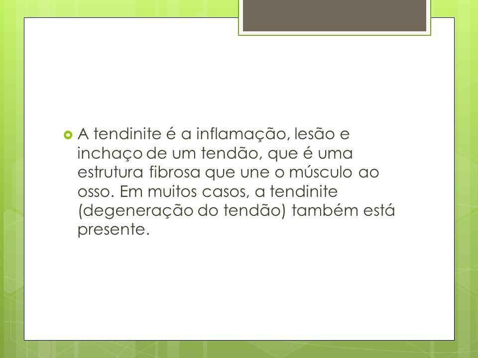  A tendinite é a inflamação, lesão e inchaço de um tendão, que é uma estrutura fibrosa que une o músculo ao osso. Em muitos casos, a tendinite (degen