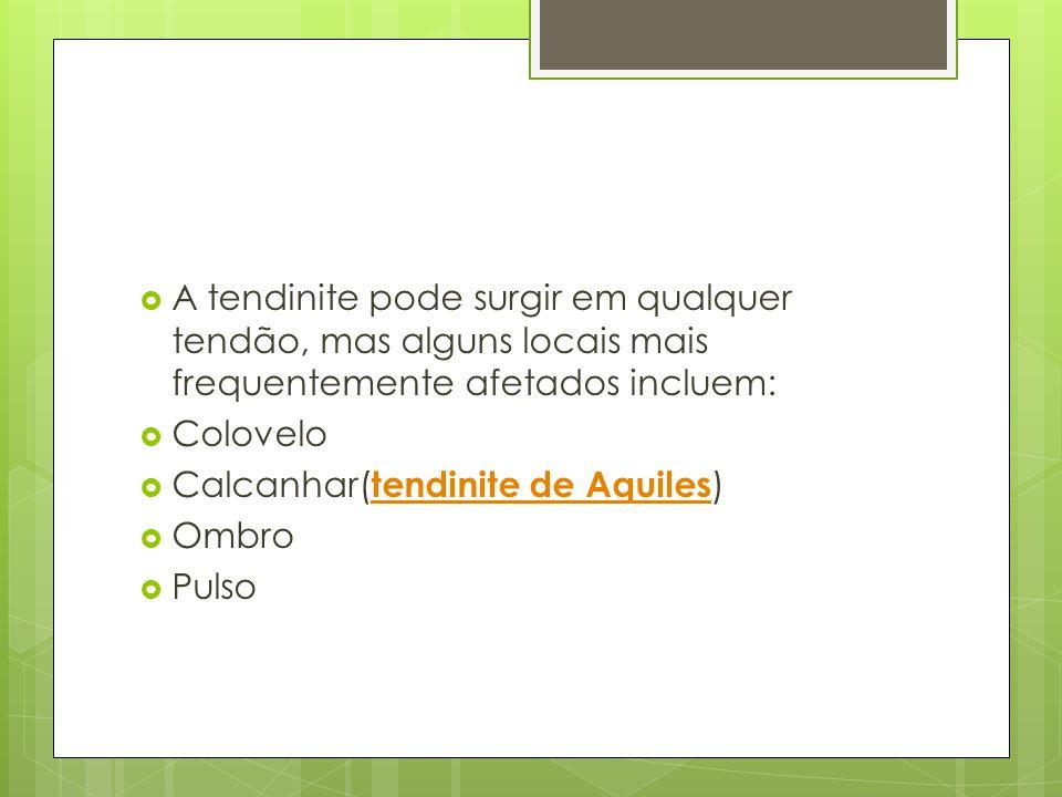  A tendinite pode surgir em qualquer tendão, mas alguns locais mais frequentemente afetados incluem:  Colovelo  Calcanhar( tendinite de Aquiles ) t