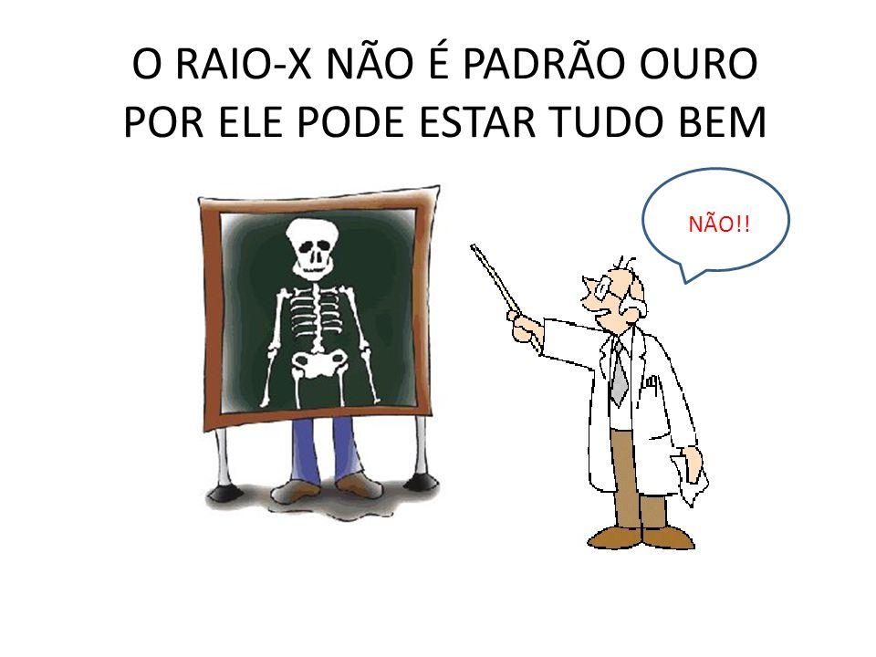 O RAIO-X NÃO É PADRÃO OURO POR ELE PODE ESTAR TUDO BEM NÃO!!