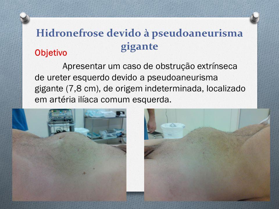 Hidronefrose devido à pseudoaneurisma gigante