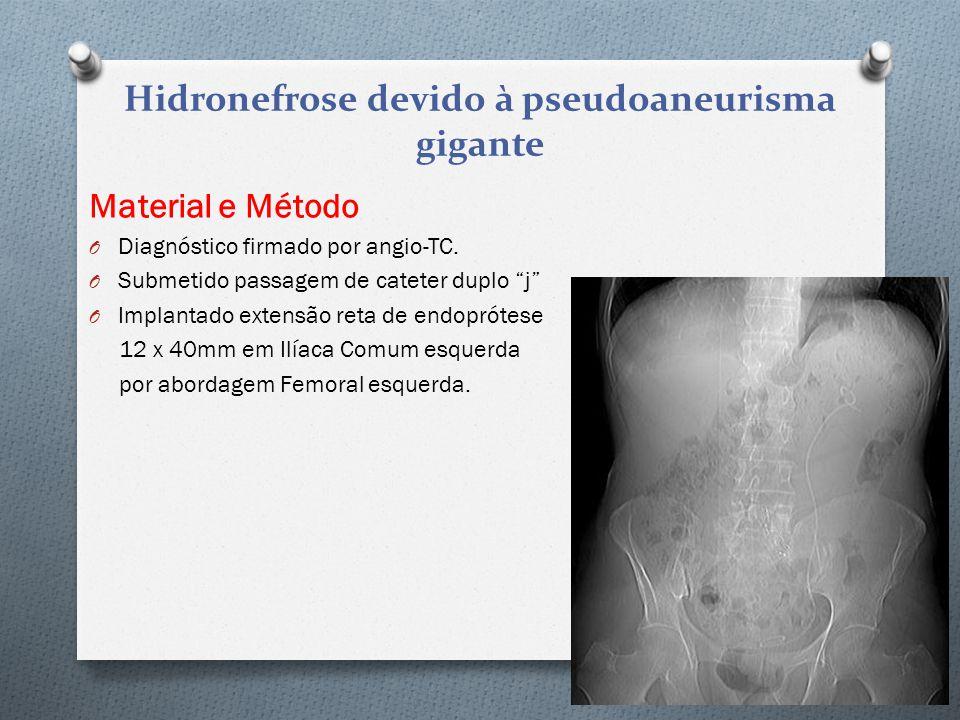 """Material e Método O Diagnóstico firmado por angio-TC. O Submetido passagem de cateter duplo """"j"""" O Implantado extensão reta de endoprótese 12 x 40mm em"""