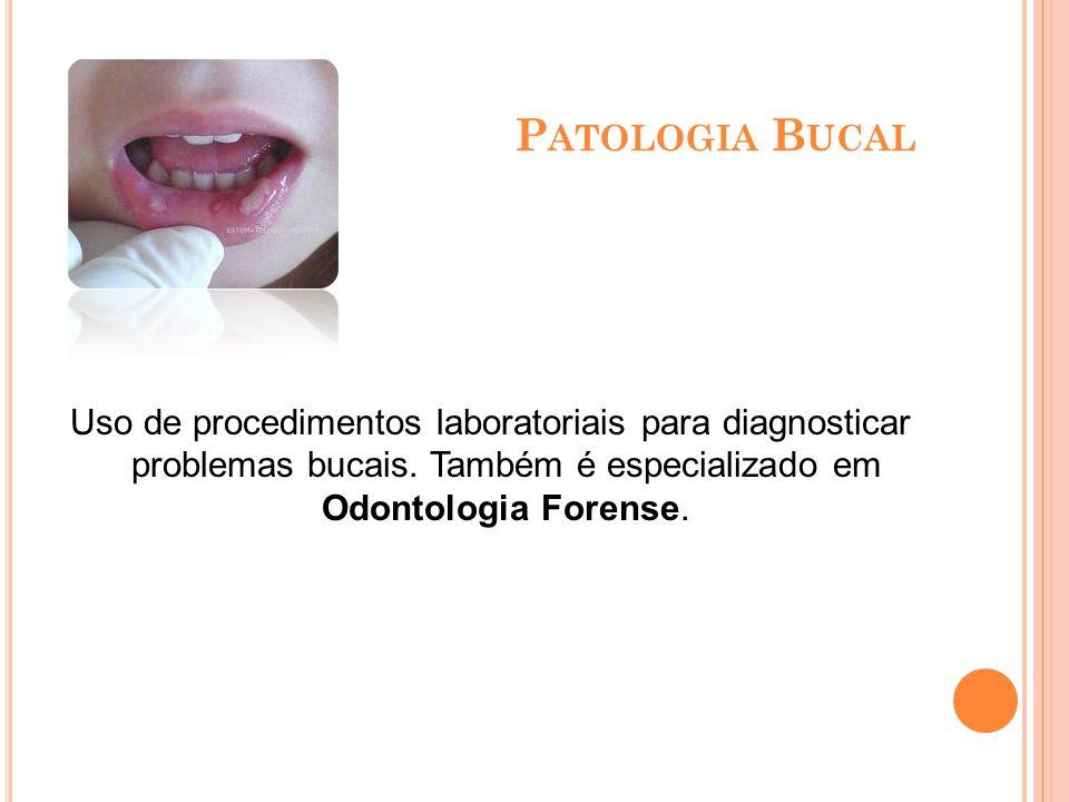 O DONTOLOGIA L EGAL Especialidade odontológica que auxilia a medicina legal e a criminalística cuidando da análise crânio- facial e dental de indivíduos, visando a identificação de pessoas e a elucidação de casos.