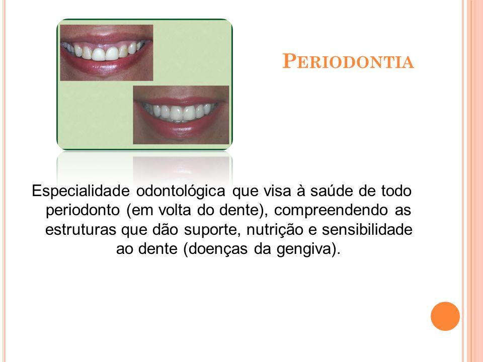 P RÓTESE D ENTÁRIA Especialização na confecção de coroas, próteses dentárias fixas, removíveis ou próteses totais conhecidas como dentaduras , além de próteses sobre implantes.