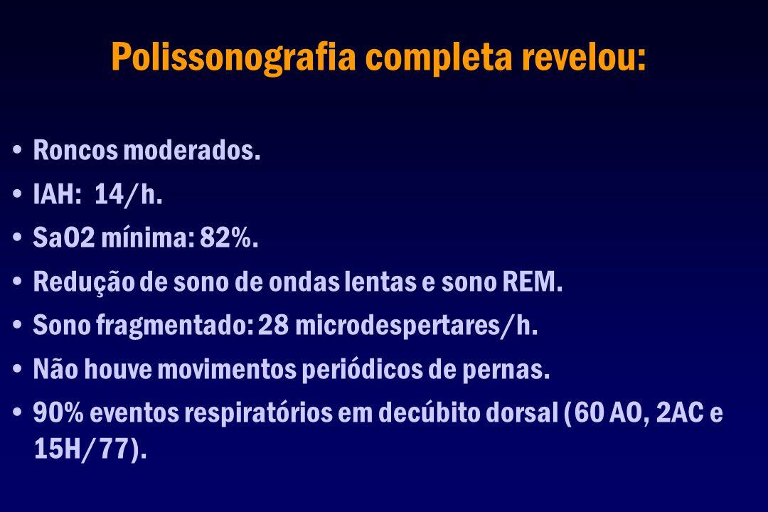 Polissonografia completa revelou: Roncos moderados. IAH: 14/h. SaO2 mínima: 82%. Redução de sono de ondas lentas e sono REM. Sono fragmentado: 28 micr