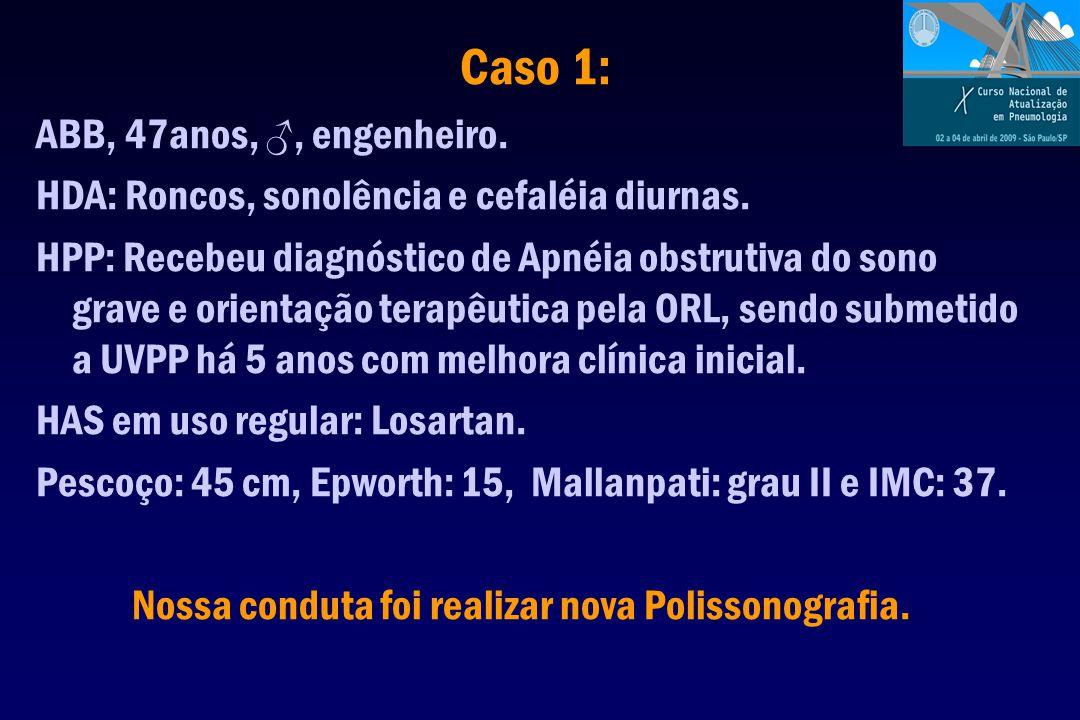Caso 1: ABB, 47anos, ♂, engenheiro. HDA: Roncos, sonolência e cefaléia diurnas. HPP: Recebeu diagnóstico de Apnéia obstrutiva do sono grave e orientaç